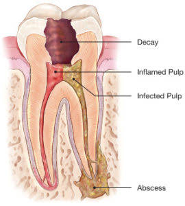 Root Canal Treatments in Stouffville